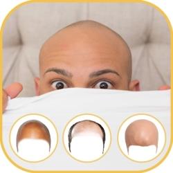 لوگو Bald photo Editor